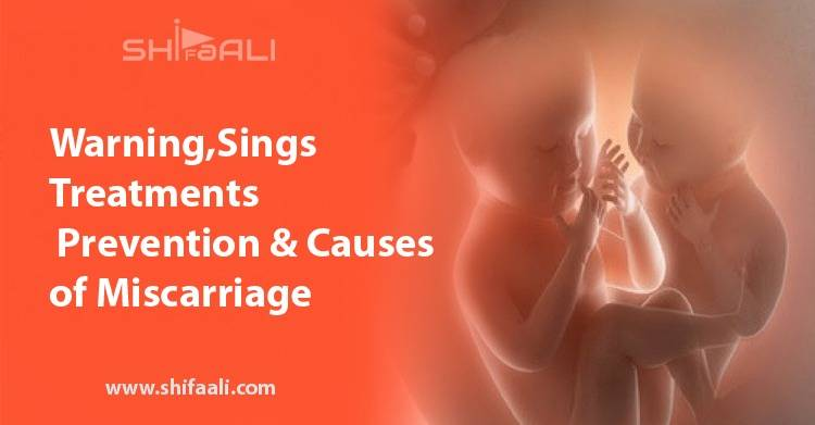 Miscarriage: Warning Signs, Treatments, Prevention and Causes of Miscarriage